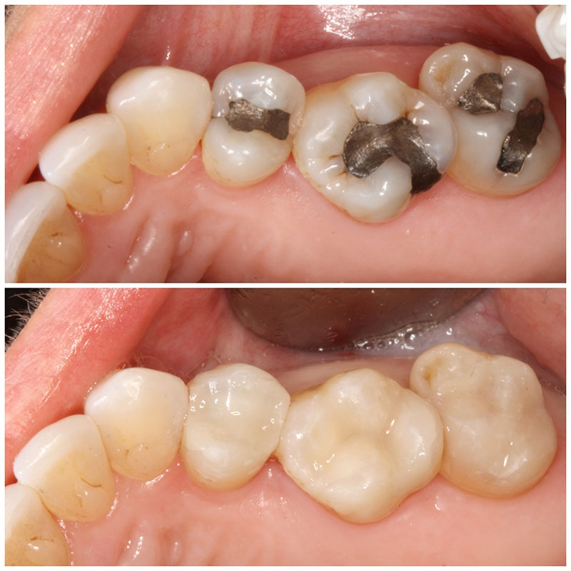 Before and After Amalgam Removal